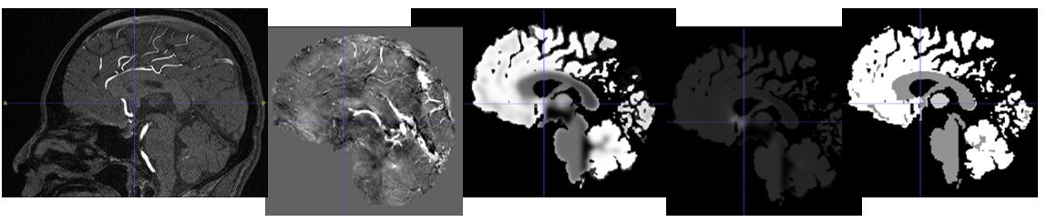 Fig. 2. MR images of the brain, from left: TOF, SWI, fractional blood volume, mean vessel density, mean vessel radius.